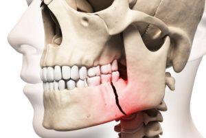 Травма челюстного сустава