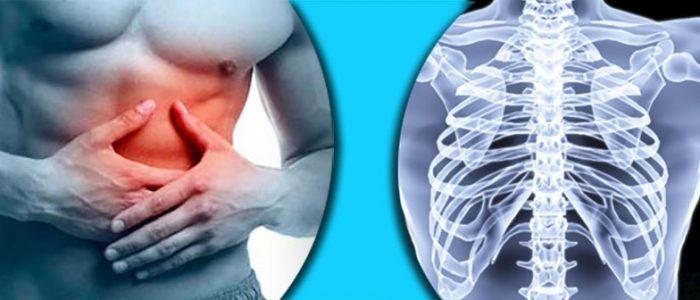 Перелом хрящевой части ребра