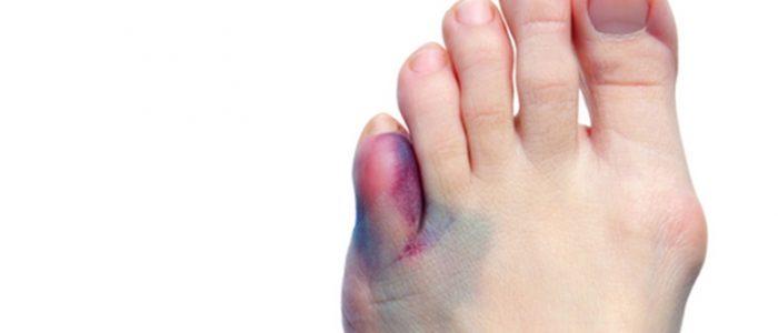 Переломы пальцев ног