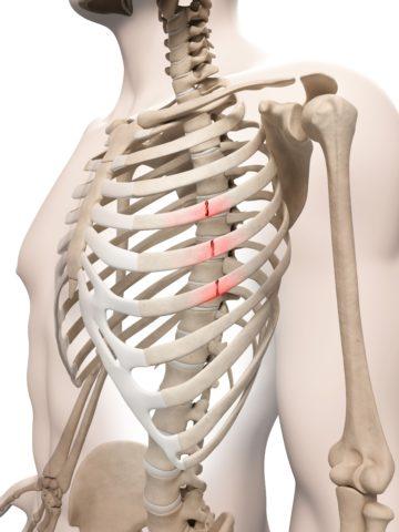Каковы признаки перелома ребер, осложнения после травмы