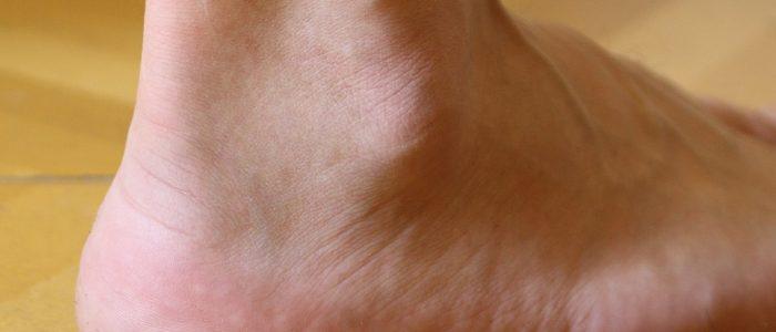 Периартрит голеностопа