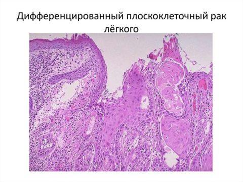Плоскоклеточный рак.