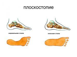 Как отличить стенокардию от остеохондроза?