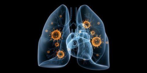 Пневмония – инфекционное заболевание
