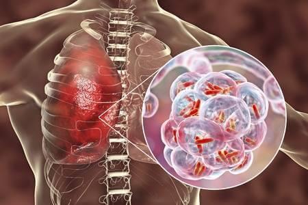 Пневмония причина боли в середине позвоночника