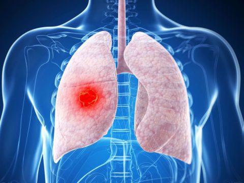 Пневмония при раке легкого