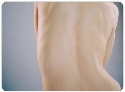 Побледнение кожи в травмированной области