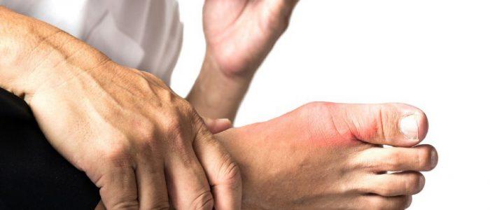 Причины и лечение при обострении подагры
