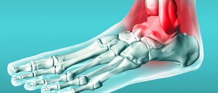 Голеностопный подагрический артрит