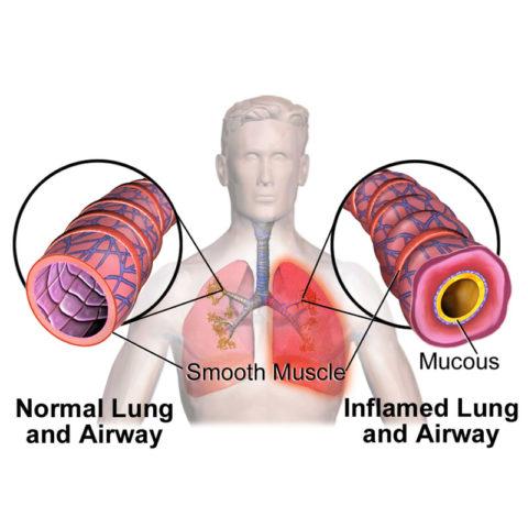 Показана разница здоровых и больных дыхательных просветов