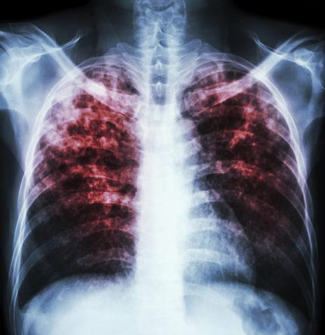 Поражение легких при туберкулезе.