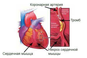 Воспаление в суставах