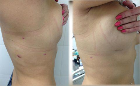 После операции на теле остаются незначительные шрамы.