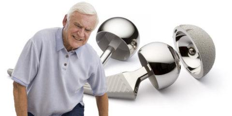 Последствия и реабилитация при переломах шейки бедра