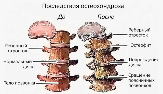 осложнения поясничного остеохондроза список