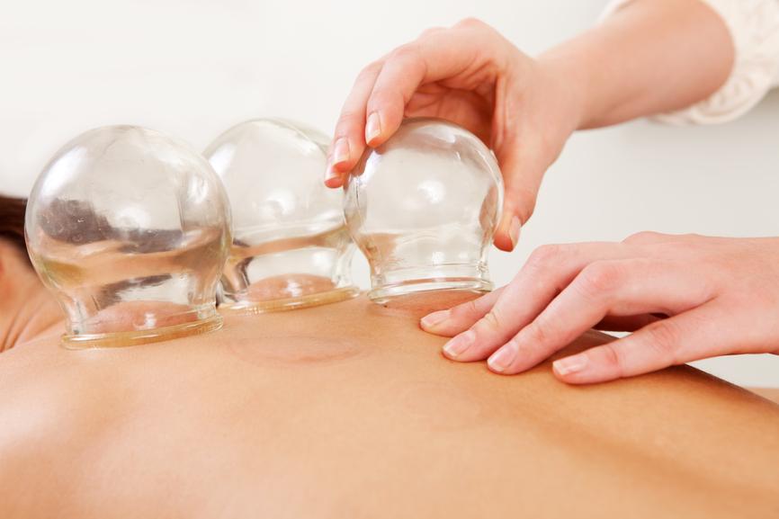 Постановка медицинских стеклянных банок на спину