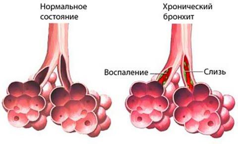 Постоянный воспалительный процесс слизистой бронхиального дерева приводит к хроническому течению болезни.