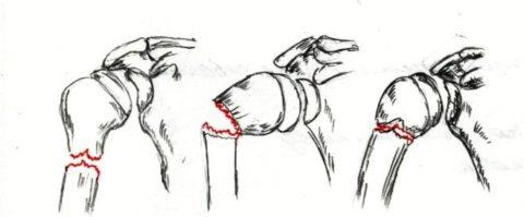 Повреждения шейки бедра в различных локализациях