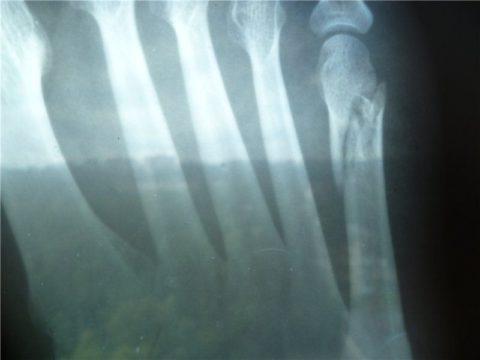 Поврежденная фаланга мизинца на ноге на рентгенографическом снимке
