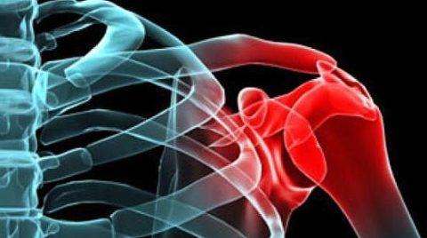 Поврежденная целостность плечевой кости в результате падений с большой высоты