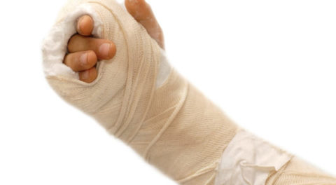 Поврежденная целостности руки в области лучевой кости в результате сильного удара