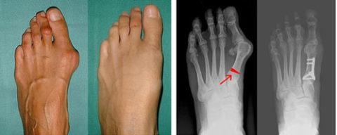 Появление вальгусной деформации на рентгеновском снимке
