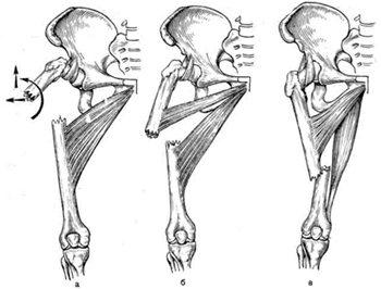 При диафизарных повреждениях травмируется тело бедренной кости.