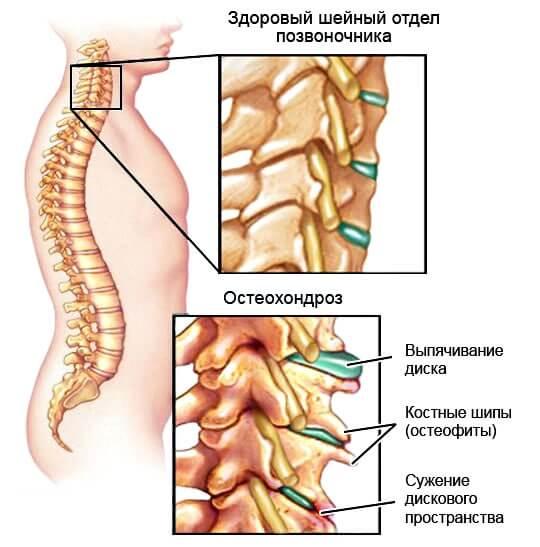 Остеохондроз и боль в спине по утрам