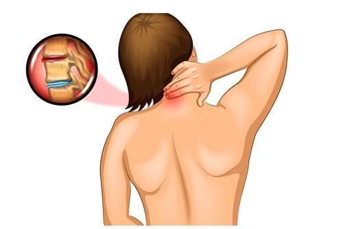 боли между лопатками в спине после сна причины и лечение