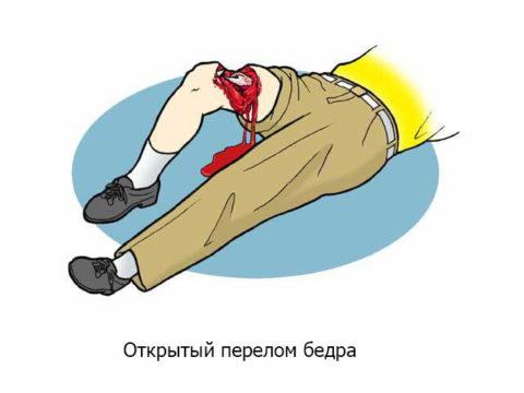 При открытом переломе бедра происходит травмирование мягких тканей и кожи.