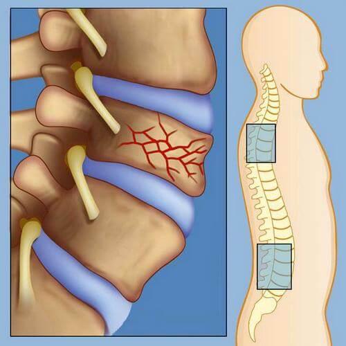 болит спина в области поясницы после поднятия тяжести