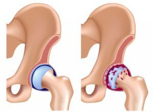 Осложнения при переломах шейки бедра: чем опасны подобные травмы и как избежать неприятных последствий