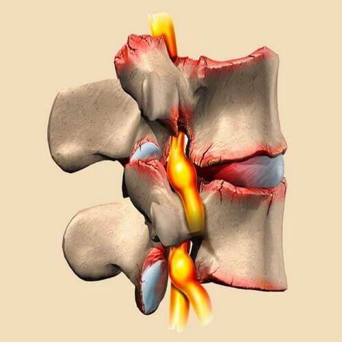 Радикулит и защемление нерва