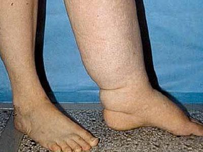 При травмировании конечностей может возникнуть явление лимфостаза.