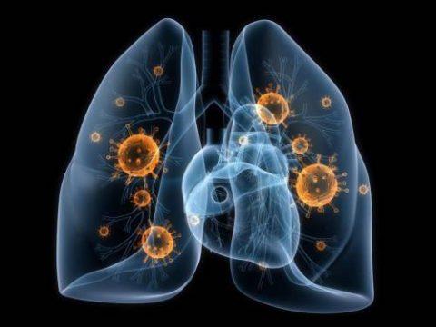 Причина возникновения воспалительного очага в области корней легких - патогенная деятельность болезнетворных организмов