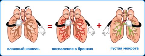 Причины кашля и экссудата в дыхательных путях