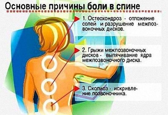 Причины ноющей боли в спине