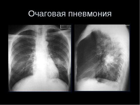 Пример развития очаговой пневмонии