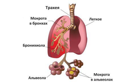 Пример того, как развивается заболевание
