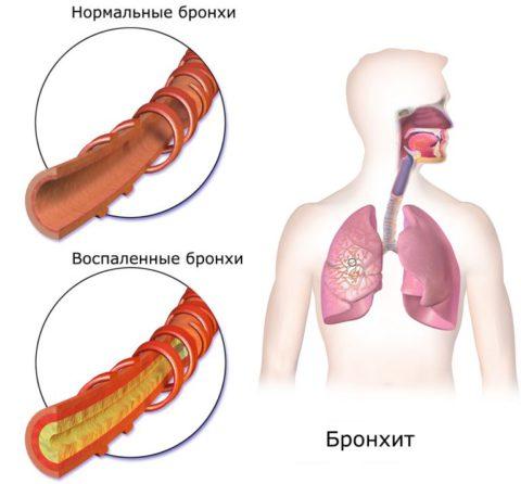 Пример того как выглядят бронхи при развитии воспалительного процесса