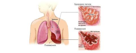 Пример здорового и воспаленного легкого
