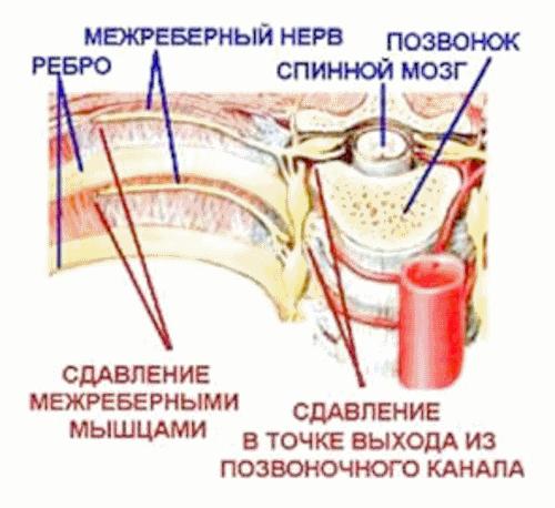 Симптомы межрёберной невралгии