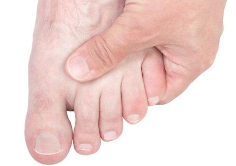 Признаки для определения поврежденной целостности мизинца на ноге