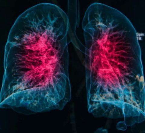 Проекция двусторонней пневмонии
