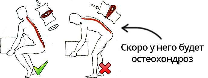 Профилактика грудного остеохондроза