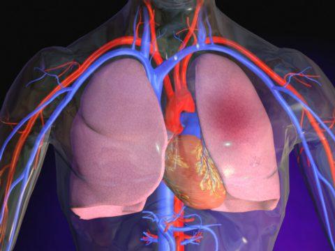 Пропотевание жидкости в ткани легких — состояние, угрожающее жизни человека