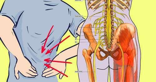 болевой синдром при остеохондрозе поясничного отдела