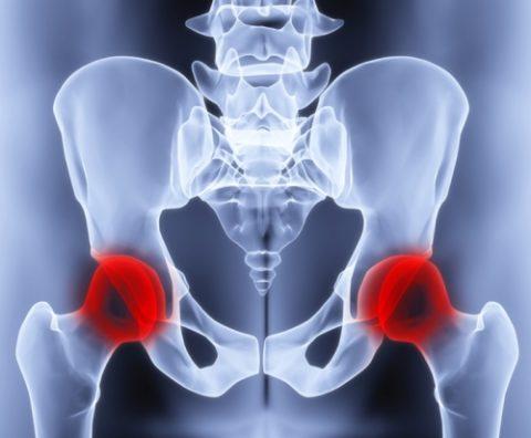 Процедура эндопротезирования и ее возможные осложнения