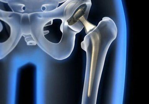 Проведение операции по эндопротезированию сустава