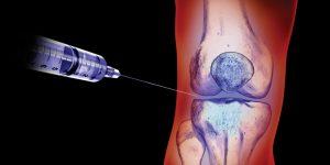 Этиология и патогенез реактивного синовита